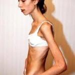 Poremećaj ishrane anoreksija