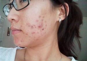 kako ukloniti akne na licu