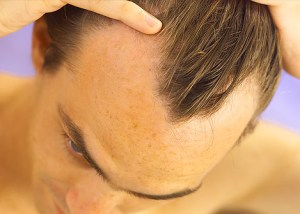 opadanje kose uzroci