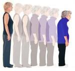Osteoporoza bolest kostiju