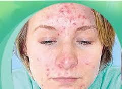 Terapija laserom najbolji način za uklanjanje bubuljica i akni