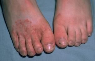 Atletsko stopalo prirodno lečenje