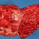 ciroza jetre