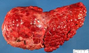 Prirodni lekovi za cirozu jetre