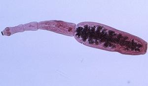 Ehinokokus jetre
