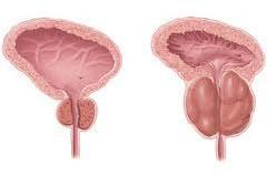 Uvećana prostata simptomi