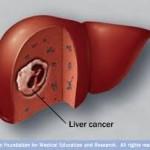 rak jetre simptomi