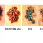 Rak kože maligni melanom