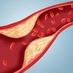 loš ldl holesterol