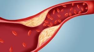 Kako sniziti loš LDL holesterol