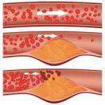 Ateroskleroza simptomi, lečenje, prevencija