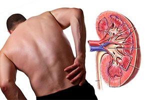 Bolesni bubrezi ishrana i prirodni lekovi