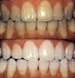 kako izbeljivanje zuba