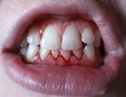 Prirodni lekovi za zubobolju krvarenje desni kamenac svež dah