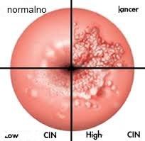 prekancerozne lezije