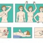Kako uraditi samopregled dojke