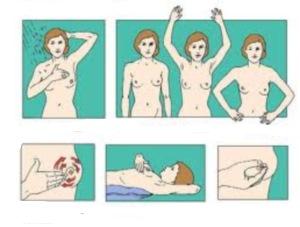 kako raditi samopregled dojke