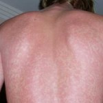 Šarlah simptomi klinička slika