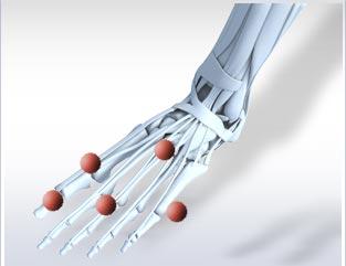 Povremeni bolovi u stopalima i petama