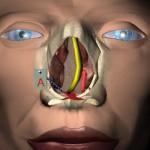 Polipi devijacija nosne pregrade i deformacija nosne piramide