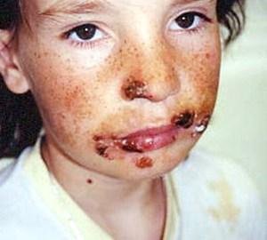 herpes simpleks kod dece