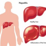 Infektivni hepatitis