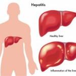 Infektivni hepatitis