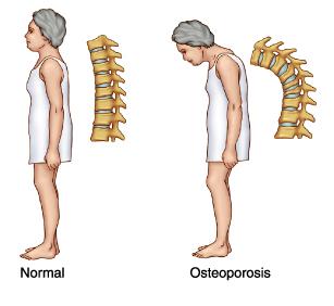 Kako lečiti osteoporozu