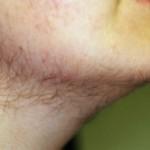 Pojačana dlakavost (maljavost) kod žena