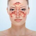 Upala nosa i sinusa hronična i alergijska