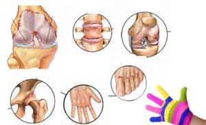 Artritis vrste i prirodno lečenje