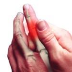 Bolovi u zglobovima prstiju šaka,kolena, lakta, ramena….