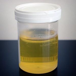 Nitrati i nitriti u urinu: Šta znači prisustvo nitrata u mokraći