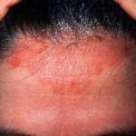 Šta su seboreja i seboreični dermatitis