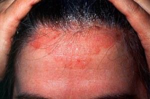 seboreja i seboreicni dermatitis