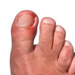 Urastanje nokta u meso lecenje
