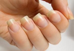 za ruke i nokte