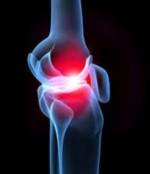 Reuma simptomi i lečenje