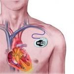 Srčane tegobe : pejsmejker