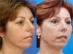 Uklanjanje pigmentnih promena na koži laserom