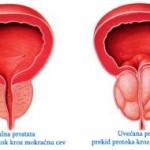 Uvećana prostata lečenje