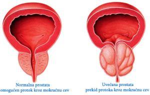 uvecana_prostata_lecenje