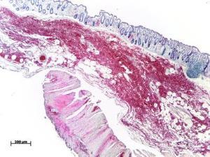 kandida u crevima