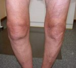 Reumatoidni artritis – artroza kuka, kolena, šake