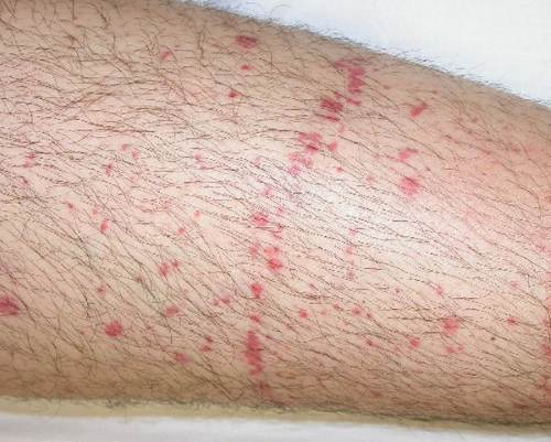 Leg rash - RightDiagnosis.com