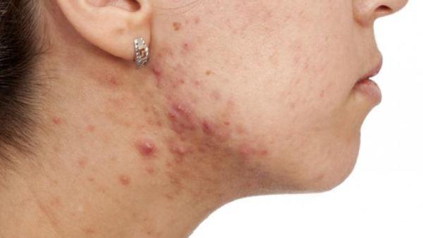 akne uzroci terapija