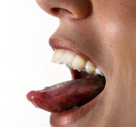 bradavice na jeziku