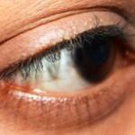Podočnjaci i tamni kolutovi ispod očiju uzrok