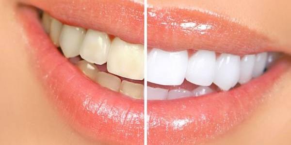 Trikovi za prirodno izbeljivanje zuba