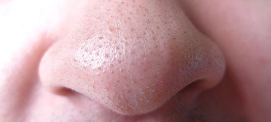 kako ukloniti mitisere sa nosa i lica